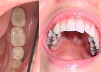 Csúnya tömések cseréje - Esztétikus fogszínû restaurációk