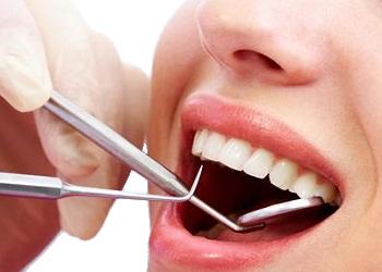 Ultrahangos fogkõ eltávolítás, depurálás